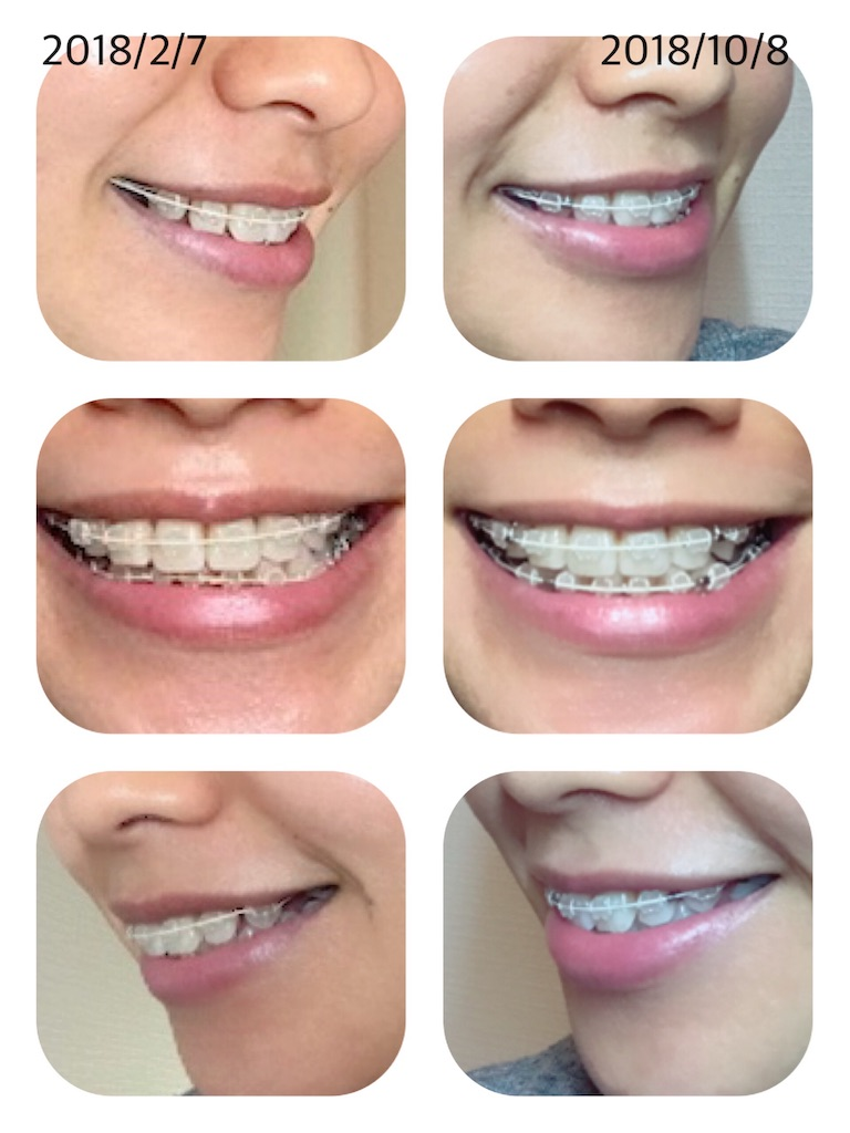 f:id:braces31:20181008214946j:image