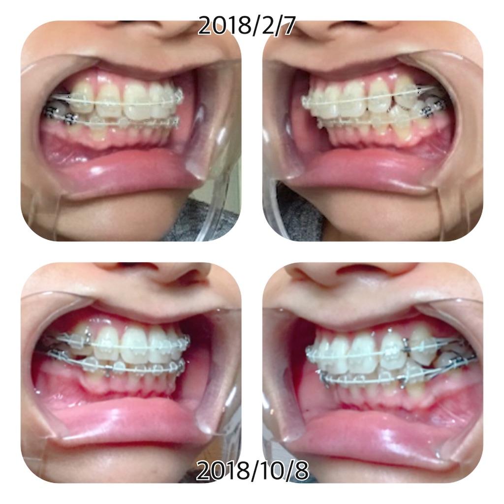 f:id:braces31:20181008215148j:image