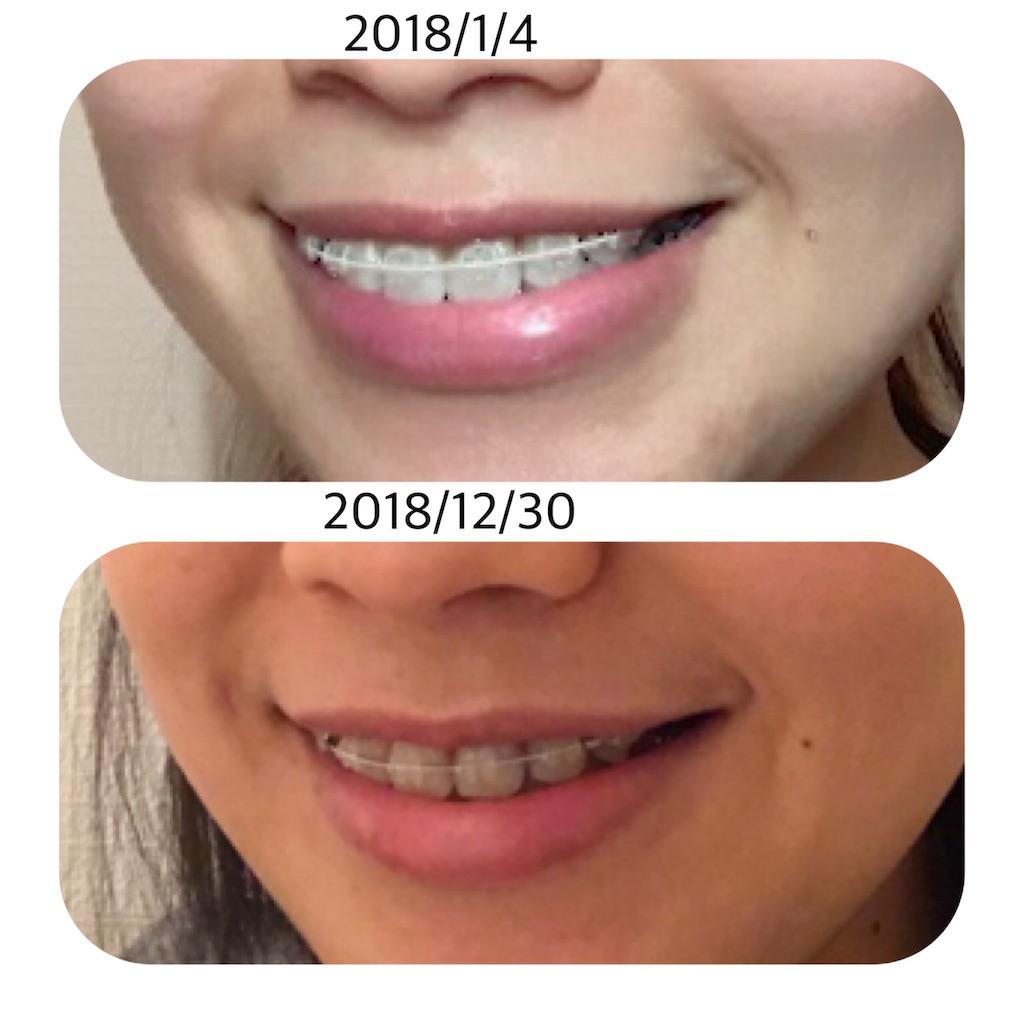f:id:braces31:20181230195826j:image