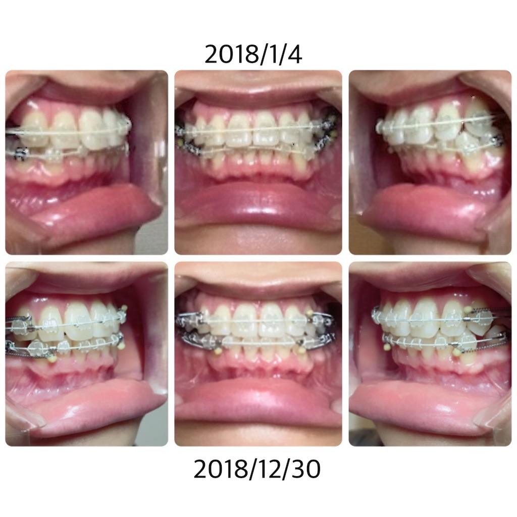 f:id:braces31:20181230200131j:image