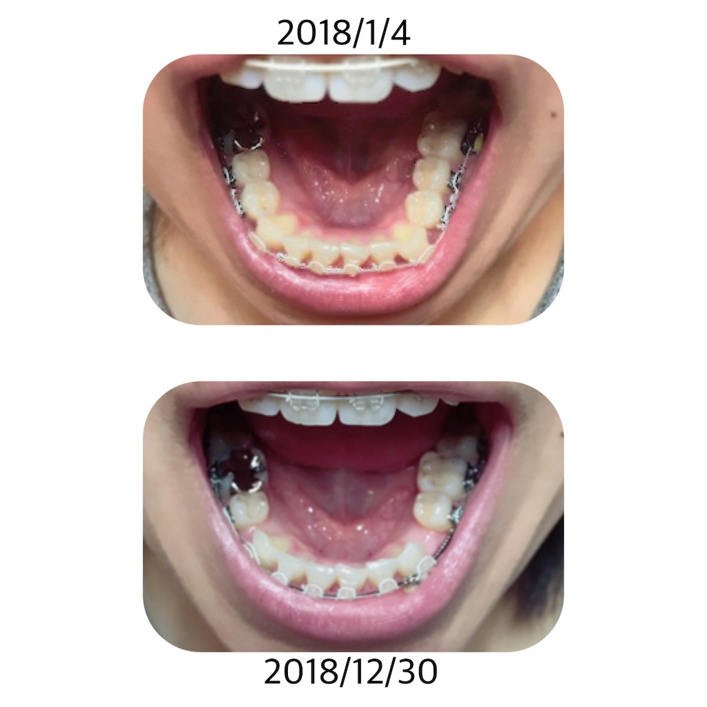 f:id:braces31:20181230200505j:image
