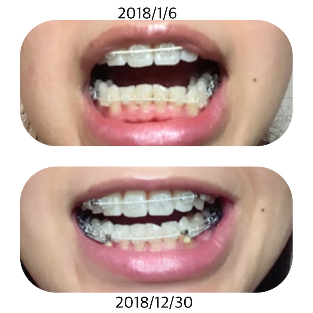 f:id:braces31:20181230200841j:image