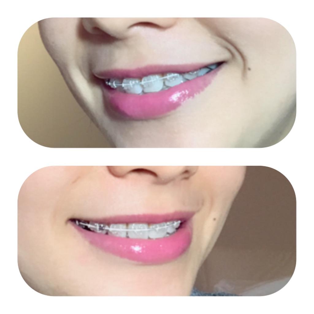f:id:braces31:20190116100010j:image