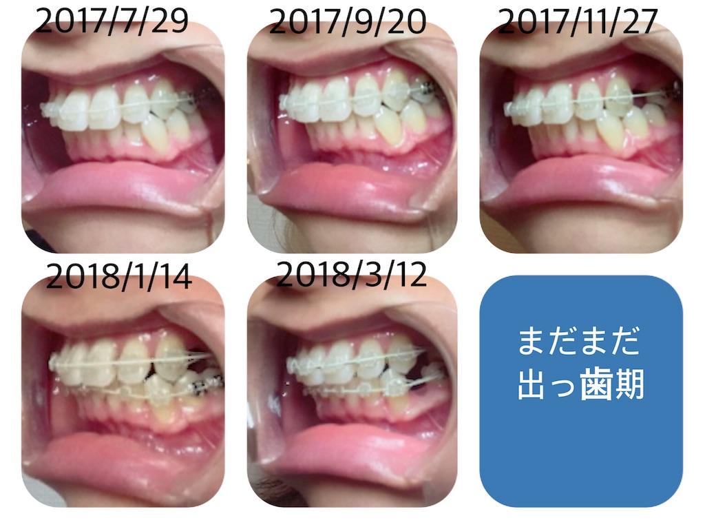 f:id:braces31:20190116101054j:image