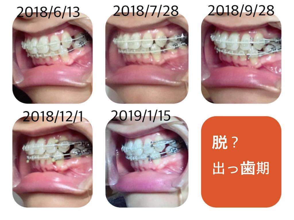 f:id:braces31:20190116101327j:image