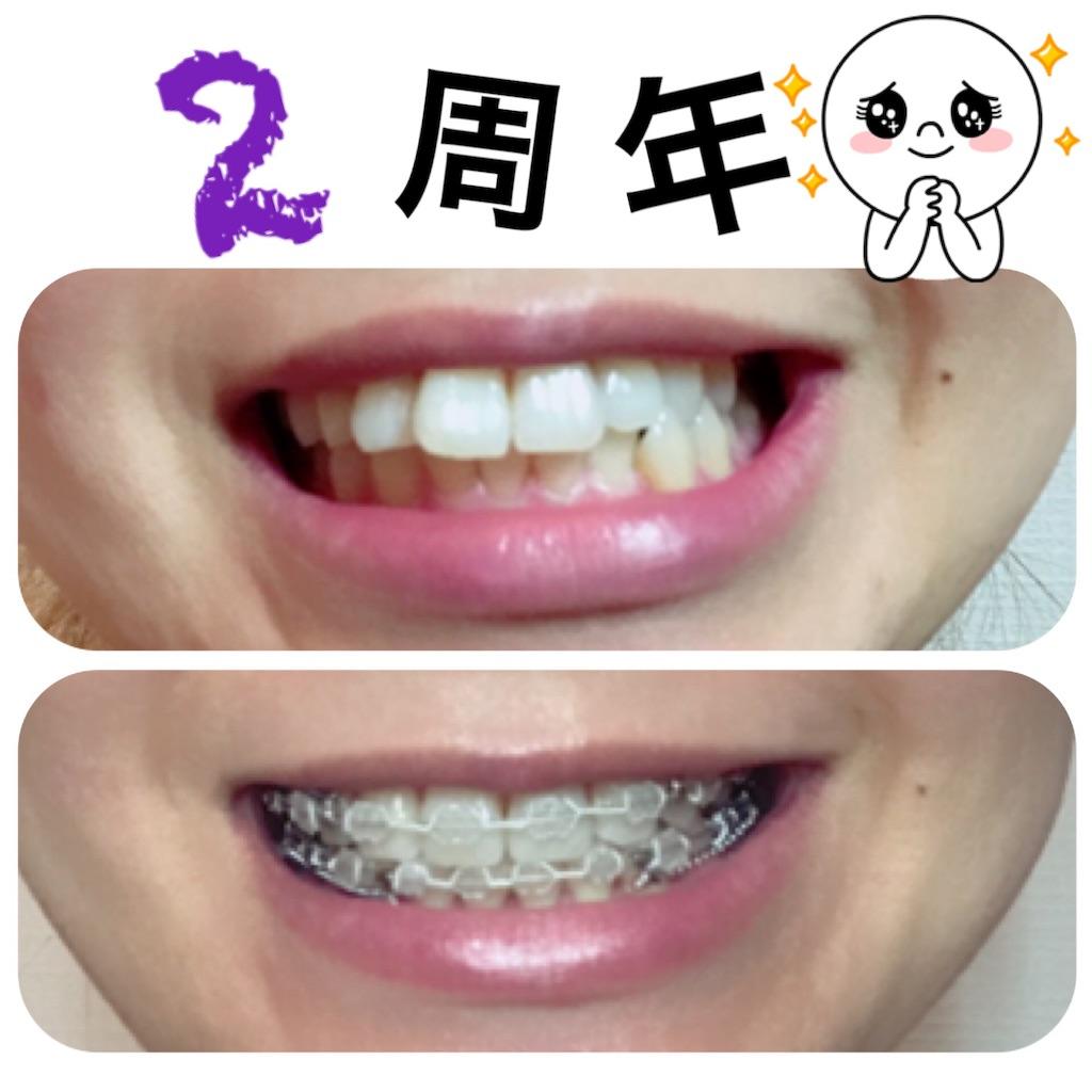 f:id:braces31:20190715233916j:image