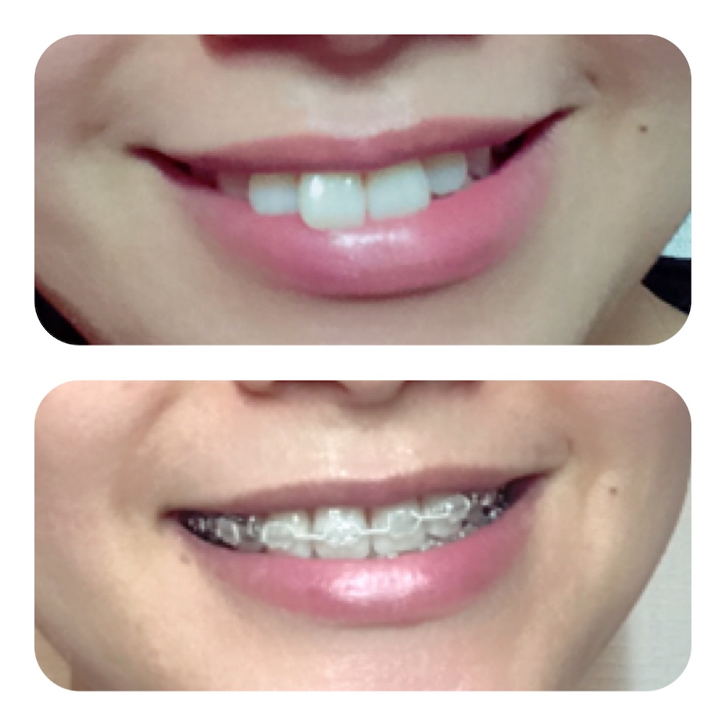 f:id:braces31:20190715233943j:image