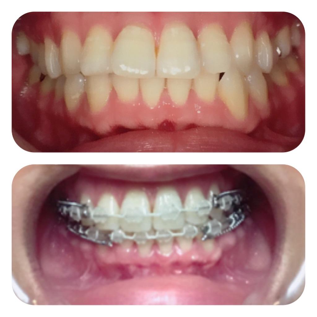 f:id:braces31:20190715234152j:image