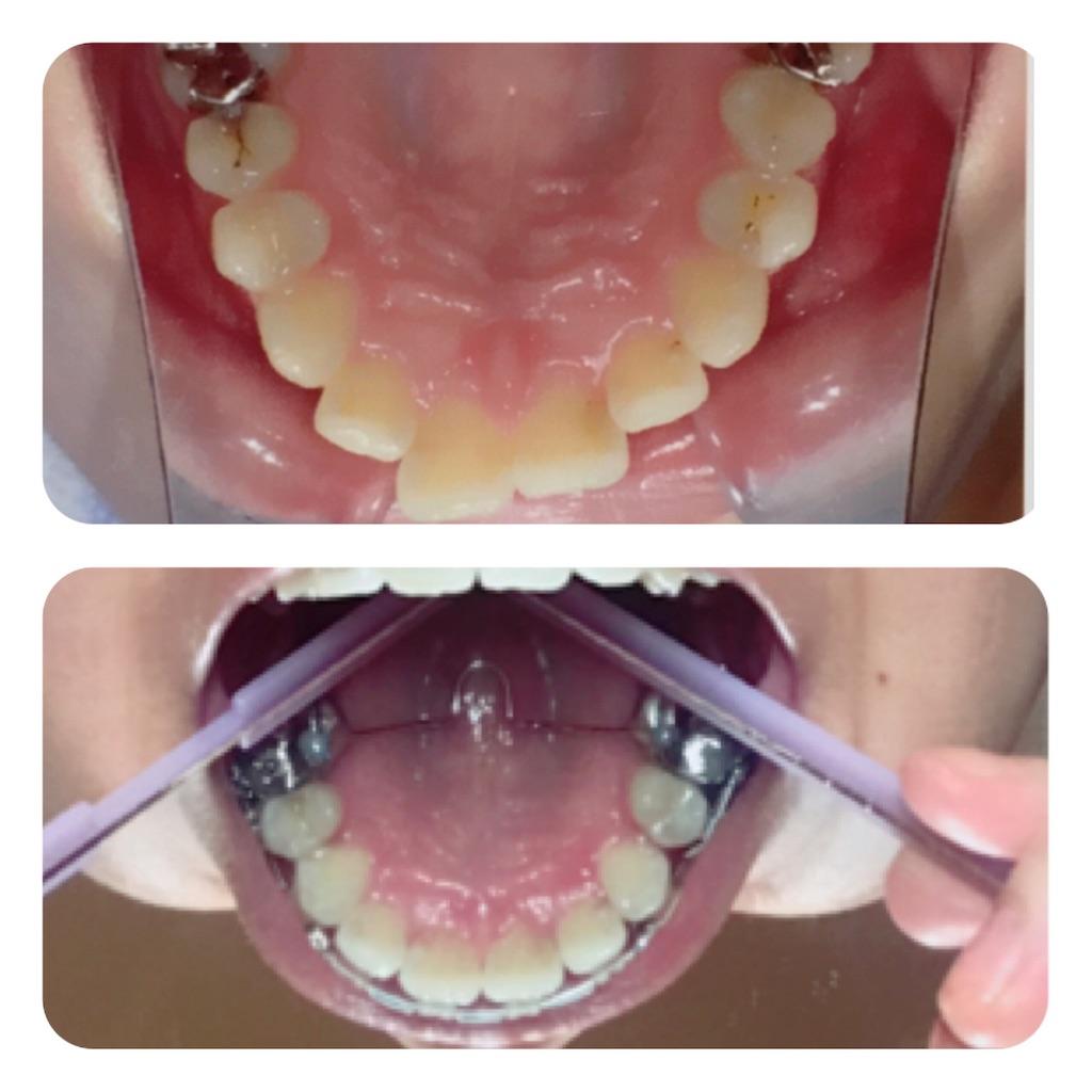 f:id:braces31:20190715234311j:image