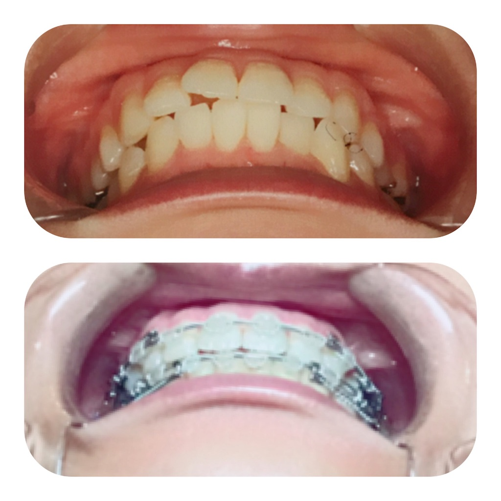 f:id:braces31:20190715234358j:image