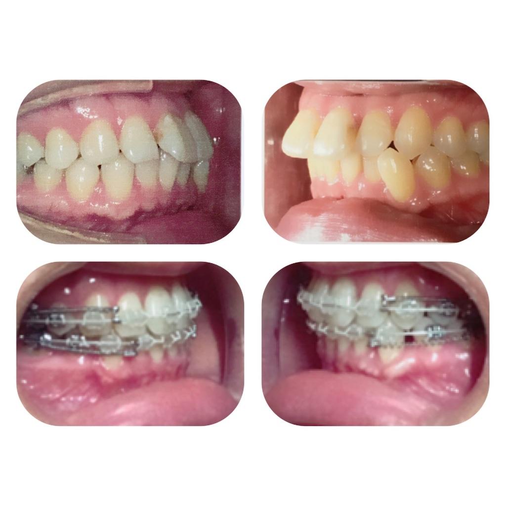 f:id:braces31:20190715234926j:image
