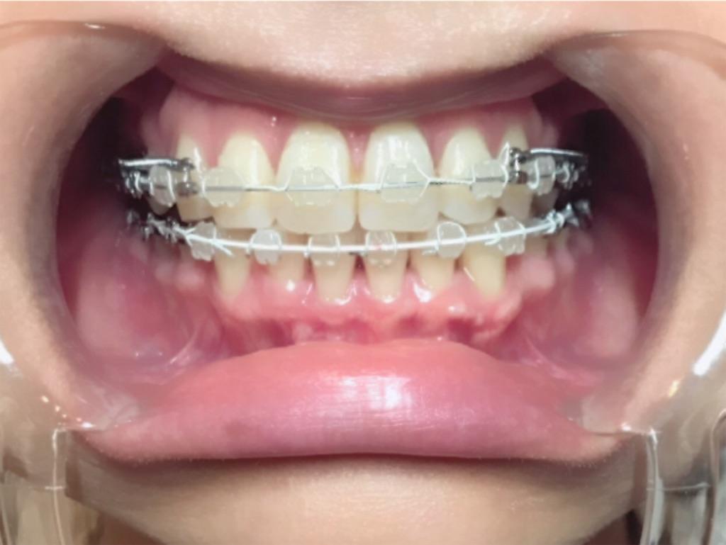 f:id:braces31:20190809000446j:image