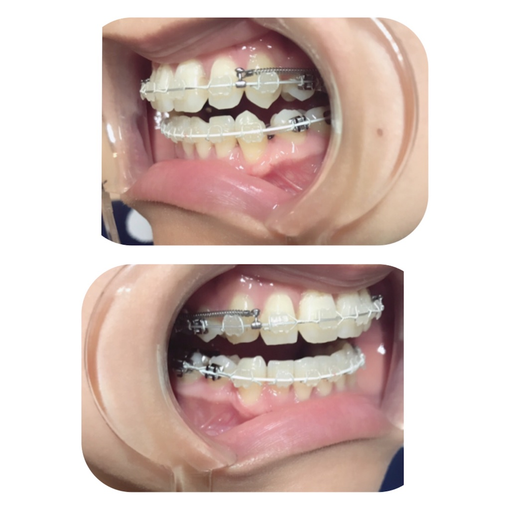f:id:braces31:20190809001443j:image