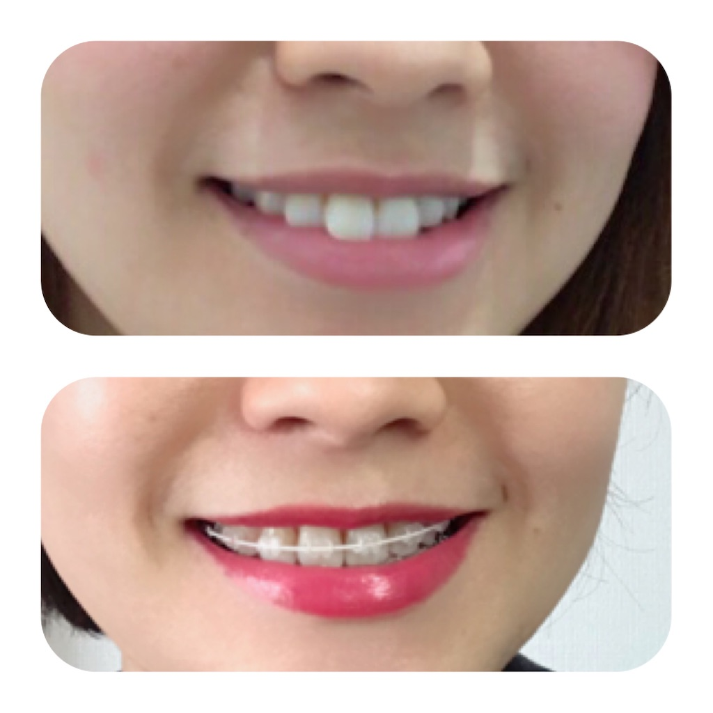 f:id:braces31:20191231125526j:image