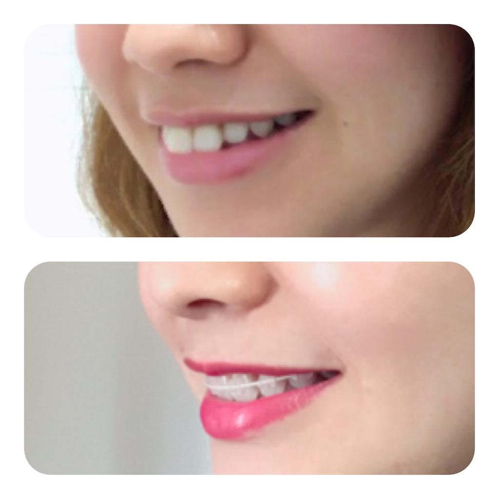 f:id:braces31:20191231125711j:image