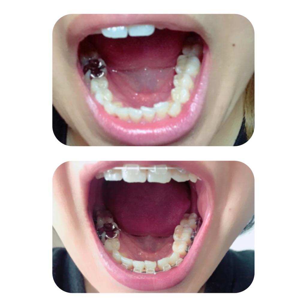 f:id:braces31:20191231130404j:image