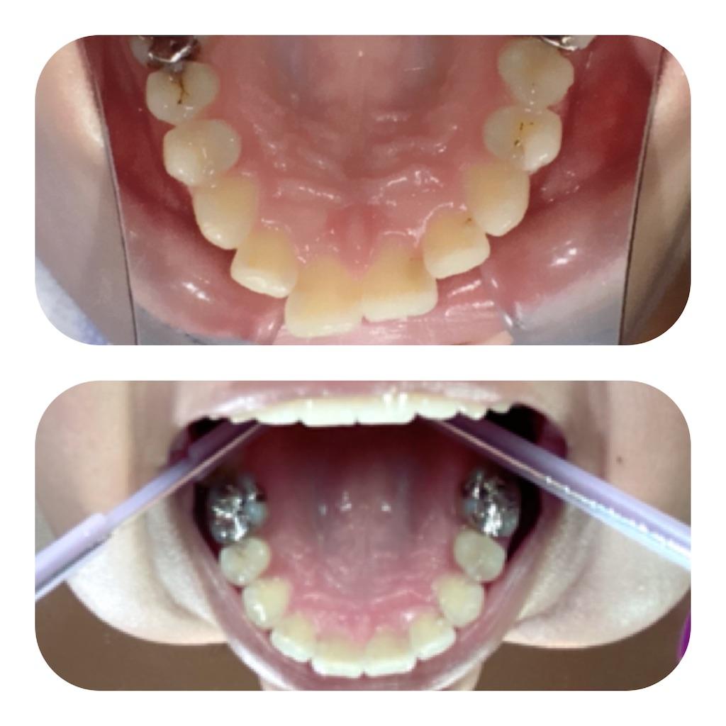 f:id:braces31:20201003214220j:image