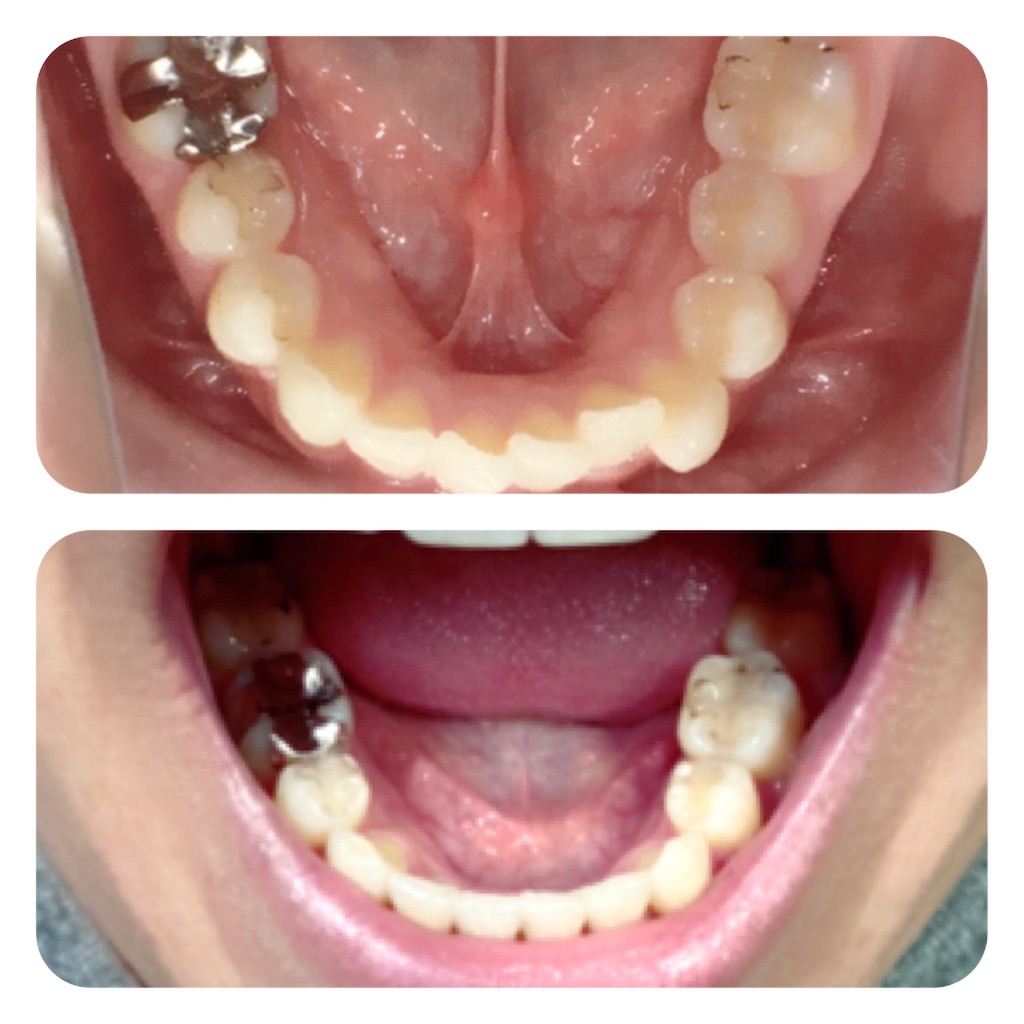 f:id:braces31:20201003214232j:image