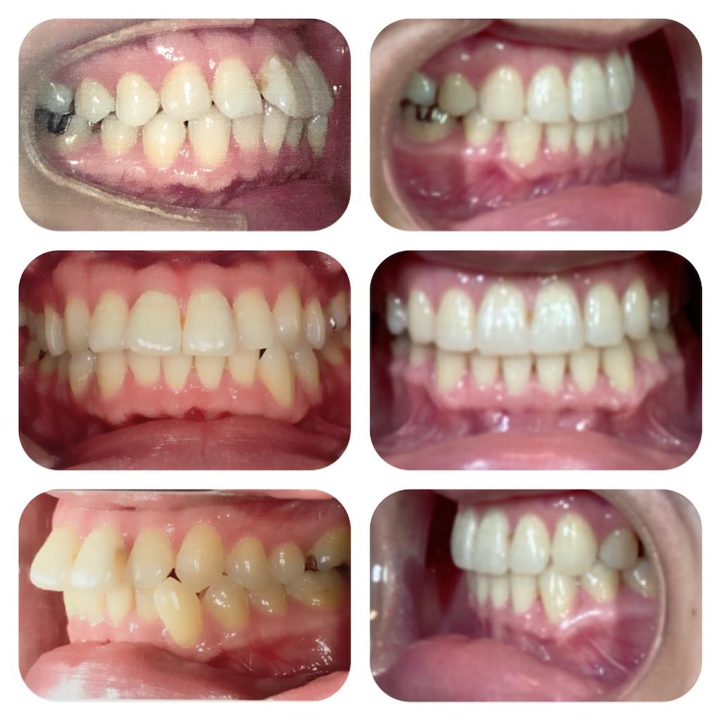 f:id:braces31:20201003214413j:image