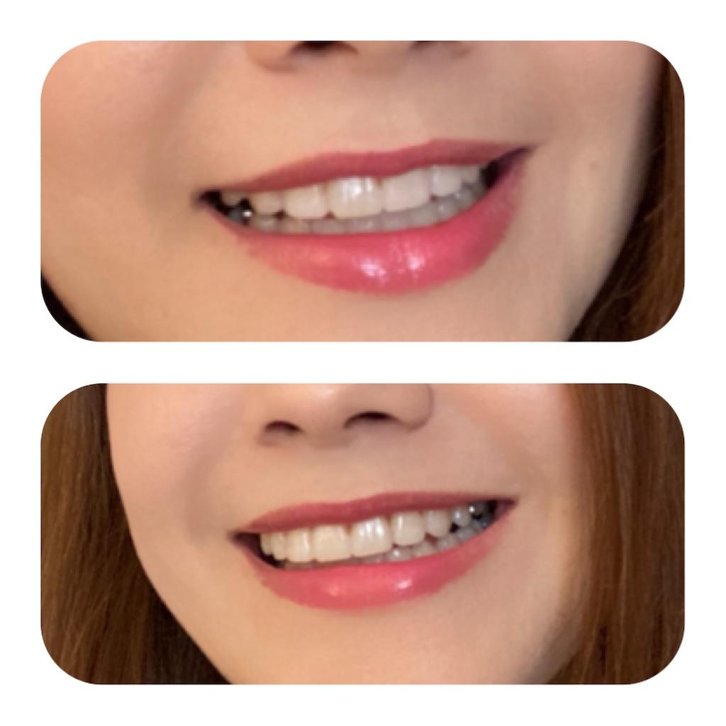 f:id:braces31:20201004164220j:image