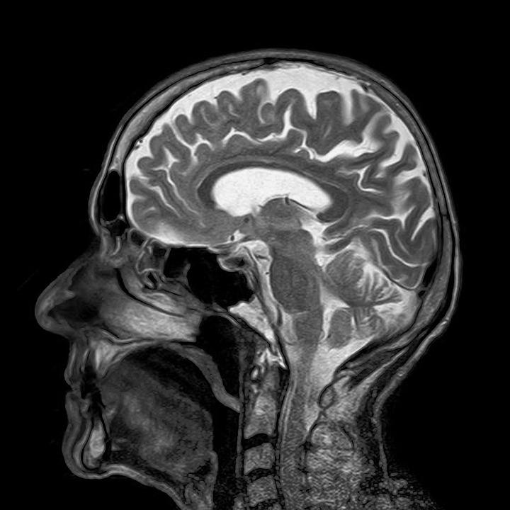 手の震えとうつ病と不眠症を克服した脳外科医推薦の治療法