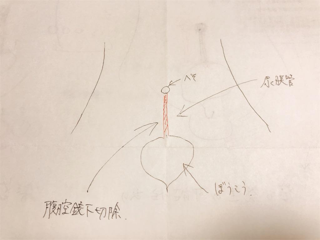 f:id:branchchannel01:20180728165216j:plain