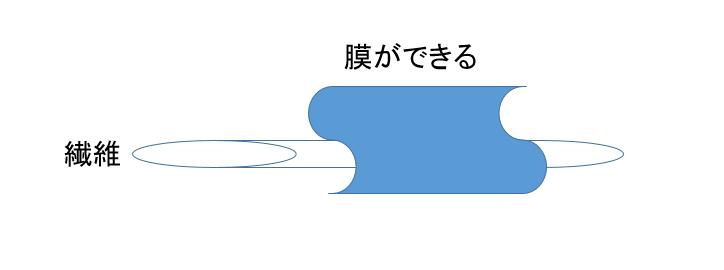 f:id:bump-rikuzyo:20180622233120p:plain