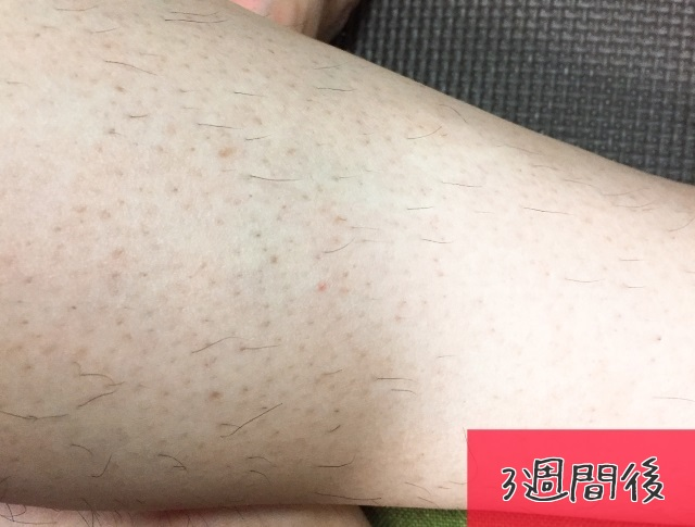 f:id:byousatsu-pn2:20171001233746j:plain