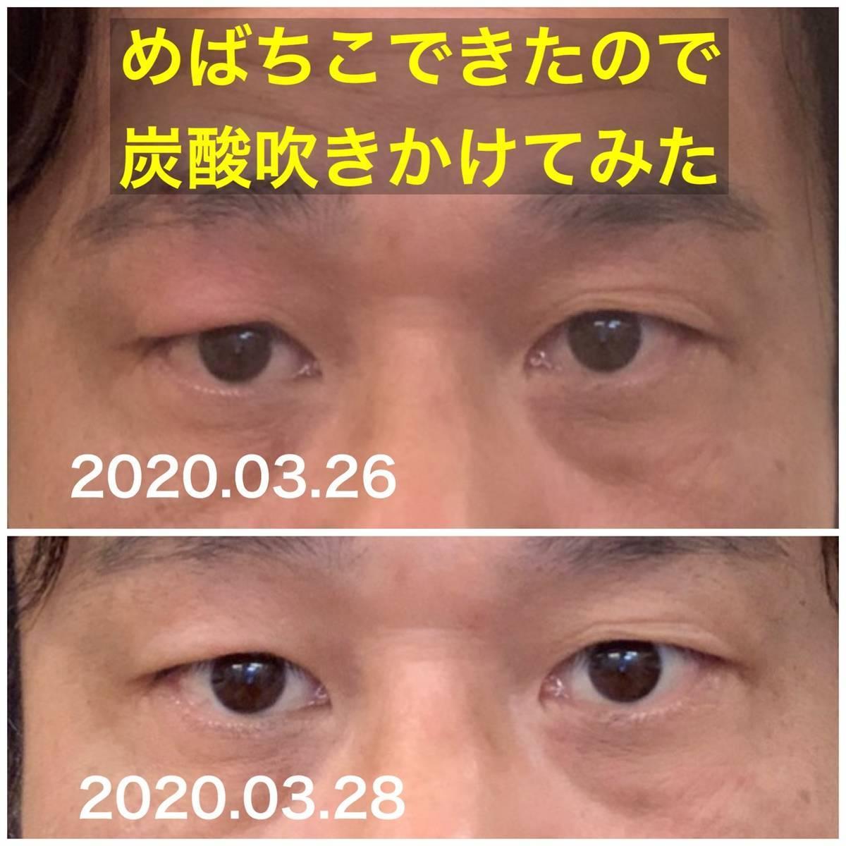 f:id:carpediem071019:20200328173834j:plain