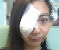 ものもらい手術後の眼帯
