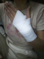 ママンがチャリでこけて、手首を捻挫したので記念?に。