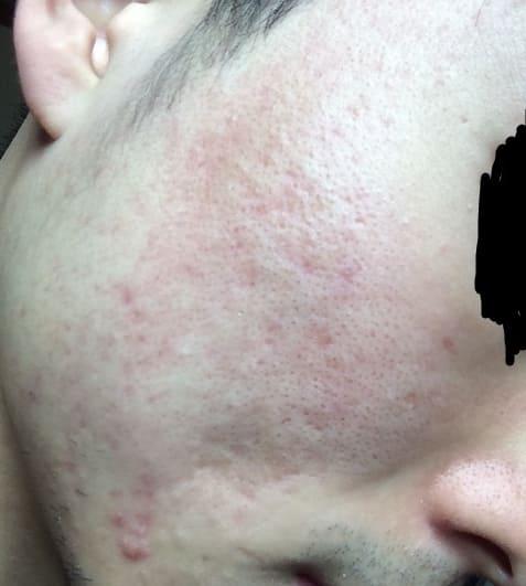 治療前の肌