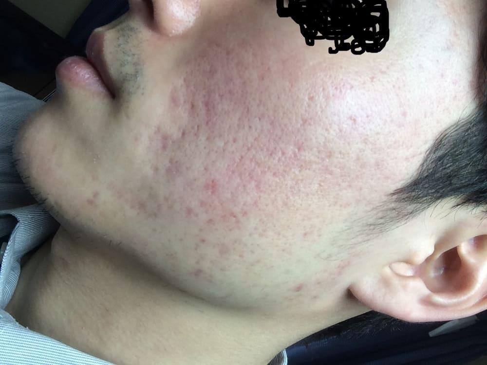 照射から1か月後の肌