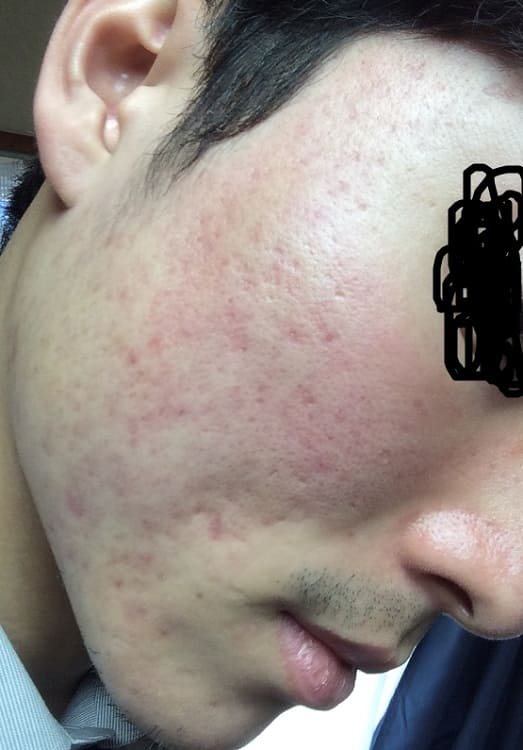 照射一カ月後の肌