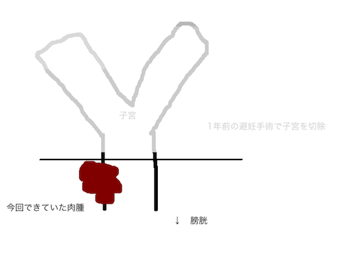 f:id:chikojirou:20161126212139p:plain