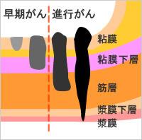 f:id:chikojirou:20161210205550j:plain