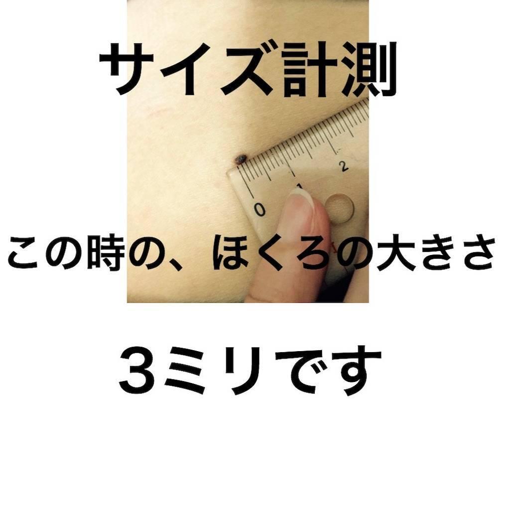 f:id:chikoken:20191202154454j:image