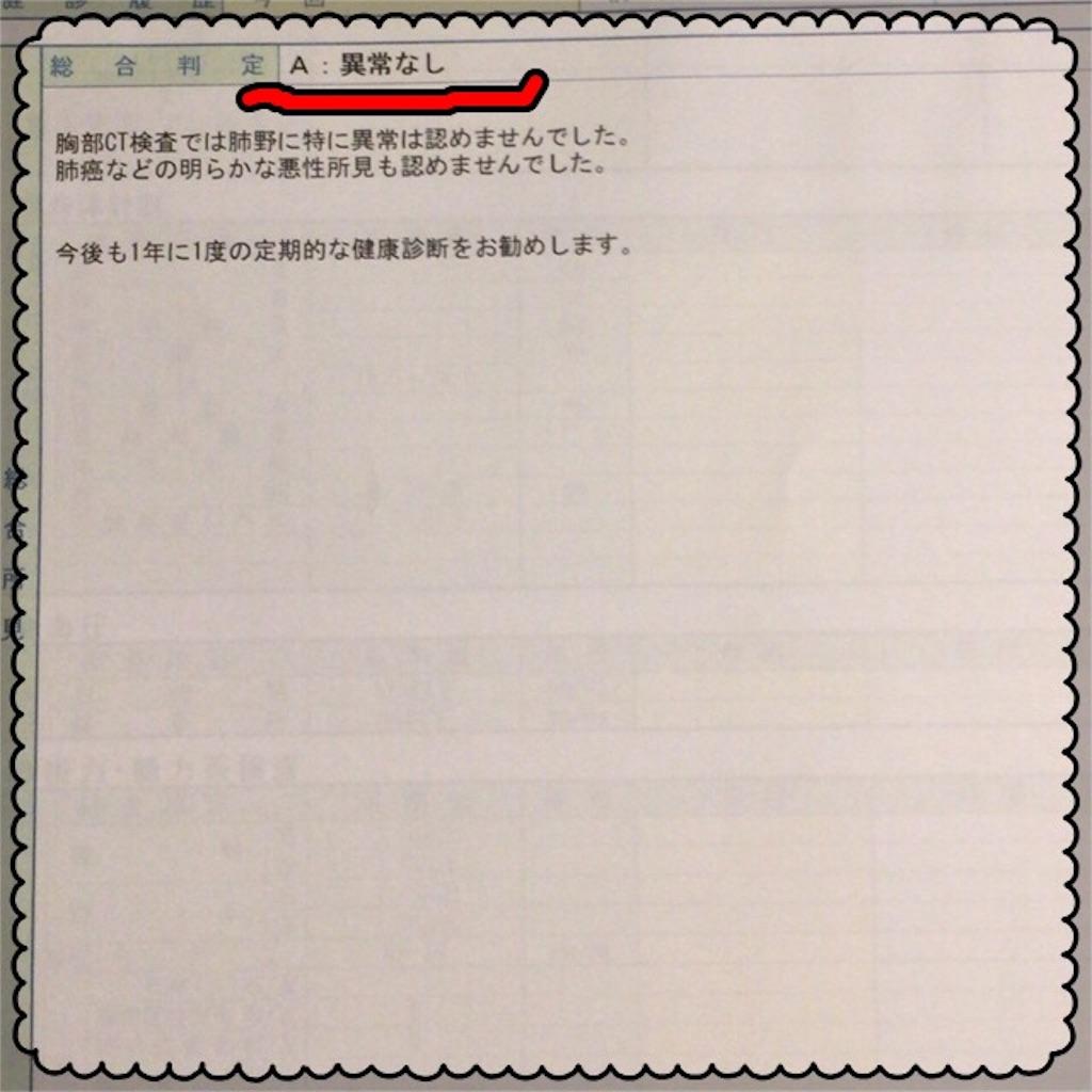 f:id:chiminosuke:20170620073455j:image