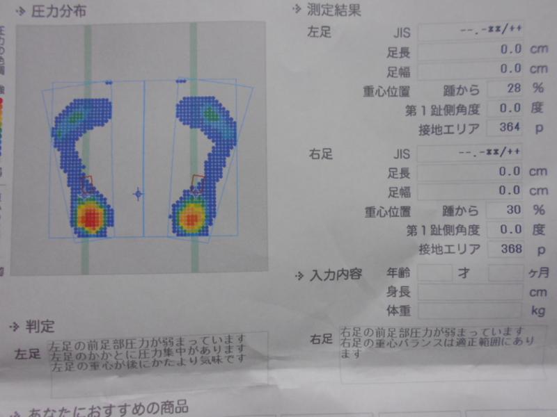 f:id:chocomale:20170210232746j:image