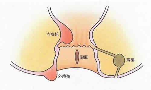 f:id:chocomale:20170804150352j:image