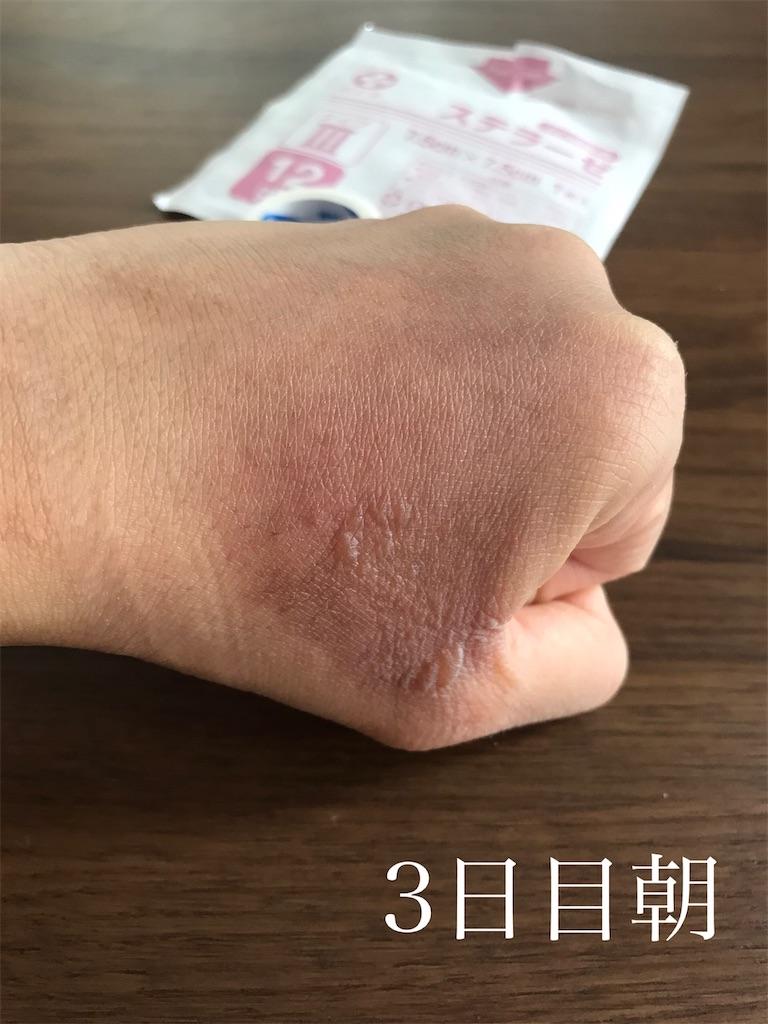 f:id:chokichokihair:20200806005534j:image