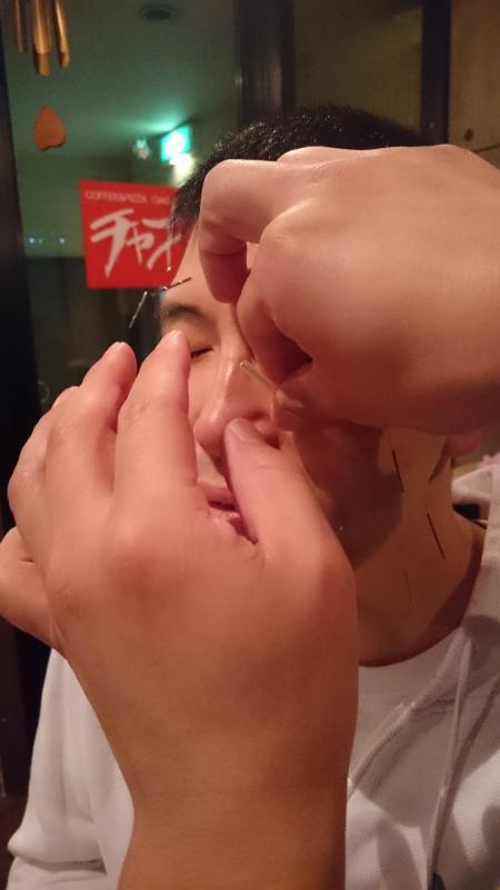 札幌美容針