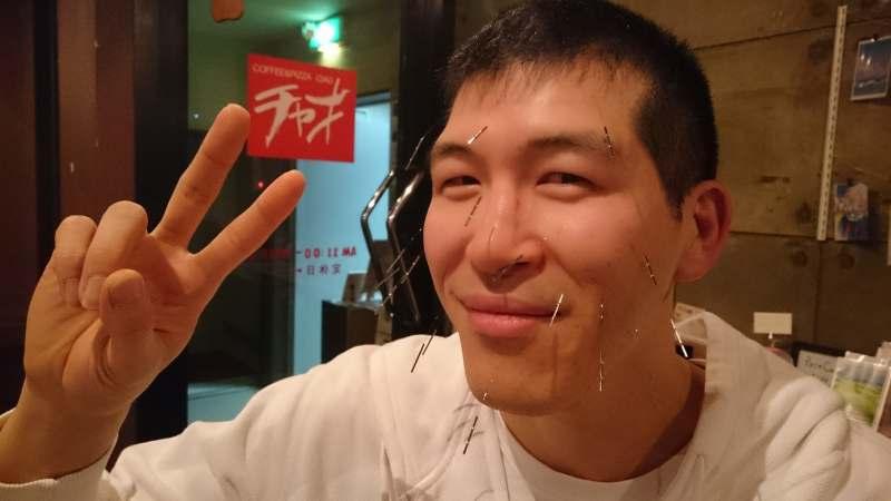札幌訪問鍼灸治療院美容針in