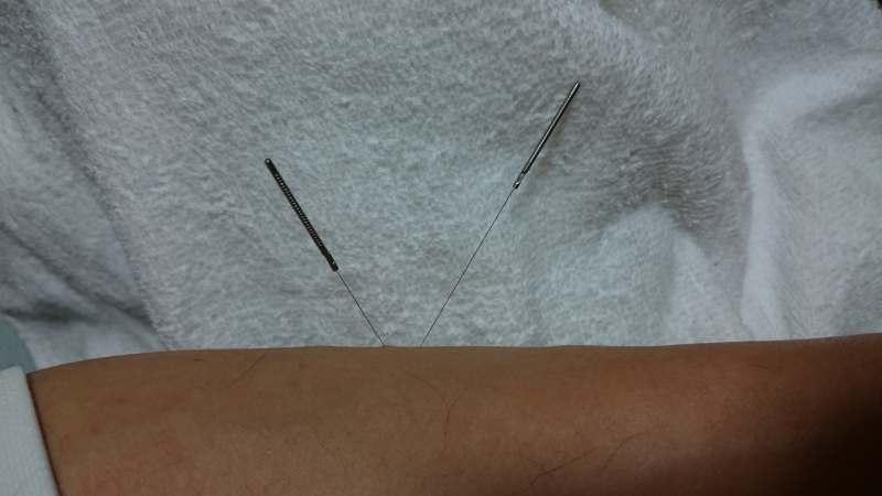 札幌針治療