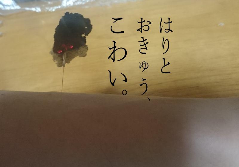 札幌鍼灸治療院灸頭針コーヒーとショートケーキ、おいしい。
