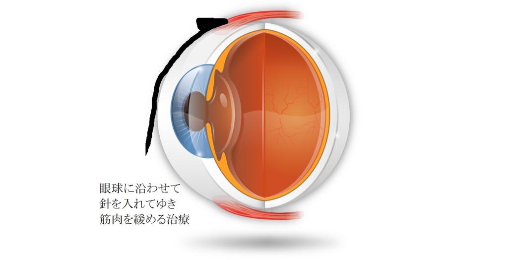 札幌訪問鍼灸治療院近視遠視