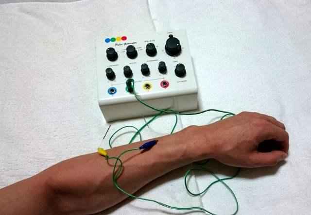 札幌訪問鍼灸治療院電気でダイエット