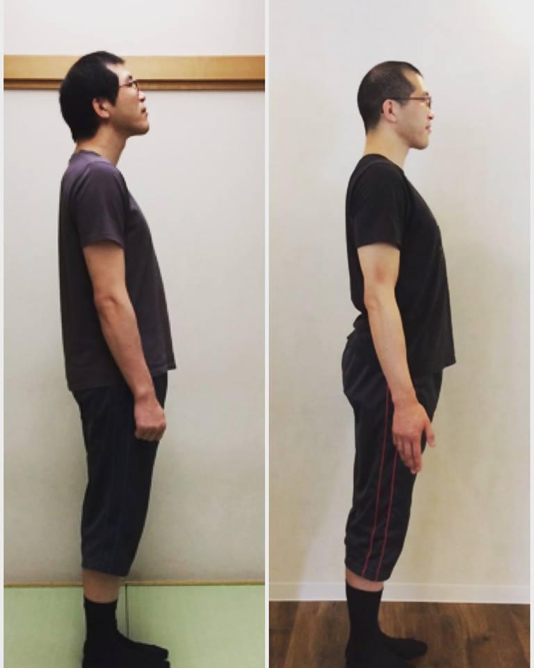 姿勢改善レッスン「骨盤力」レッスン前後の比較