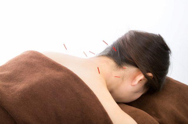 後頭下筋群に針灸治療の注文