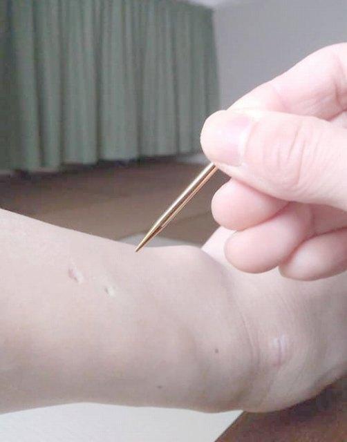 てい針の鋭い方。ちょっと跡つきます。